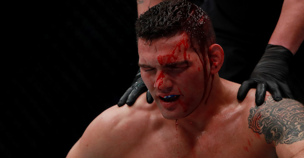 Chris Weidman was gushing blood after a devastating knee to the head knocked him clean out