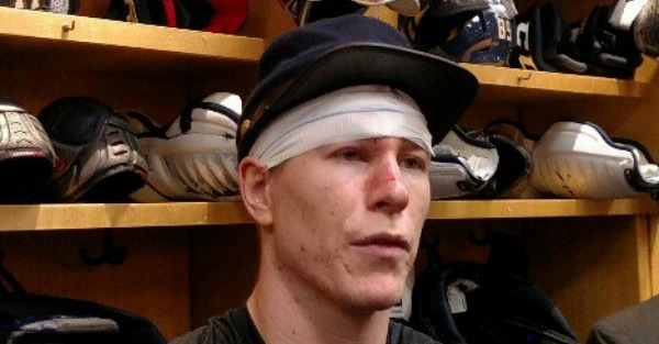 NHL player needed 36 stitches, but what he did next was even more impressive