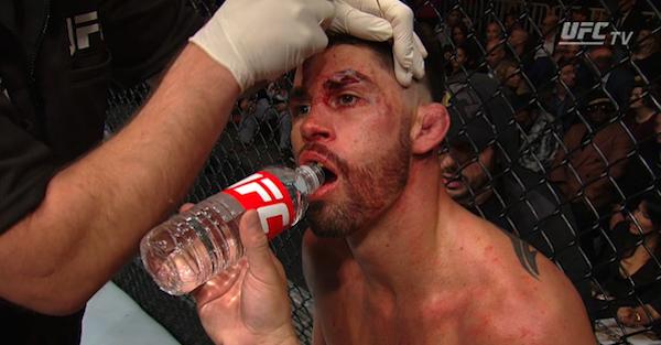 UFC 207: Cody Garbrandt decimates Dominick Cruz to become bantamweight championship