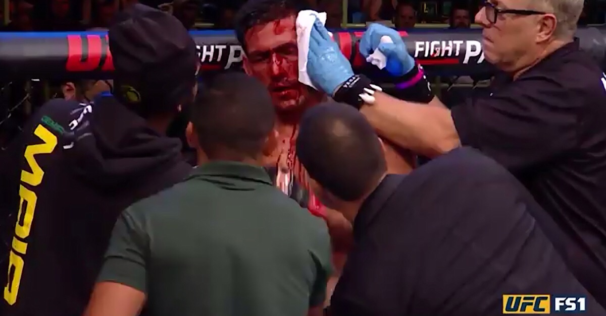 UFC fighter had to be rushed from the Octagon after leaving his opponent a bloody mess
