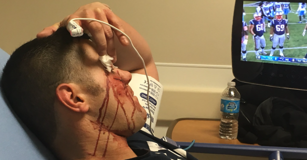 Video of footage of former World Champion suffering broken facial bones to air Thursday